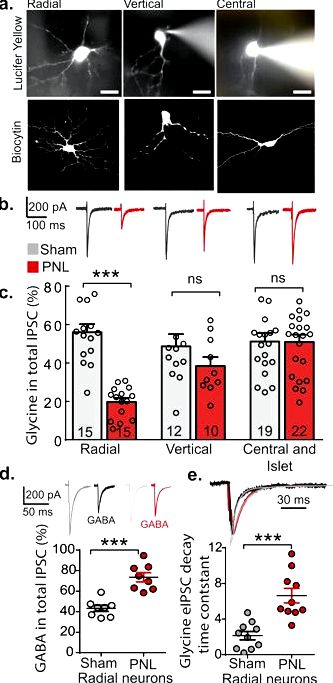 Inhibition of monocarboxylate transporter one in spinal-cord horn signif the behavior nociceptive